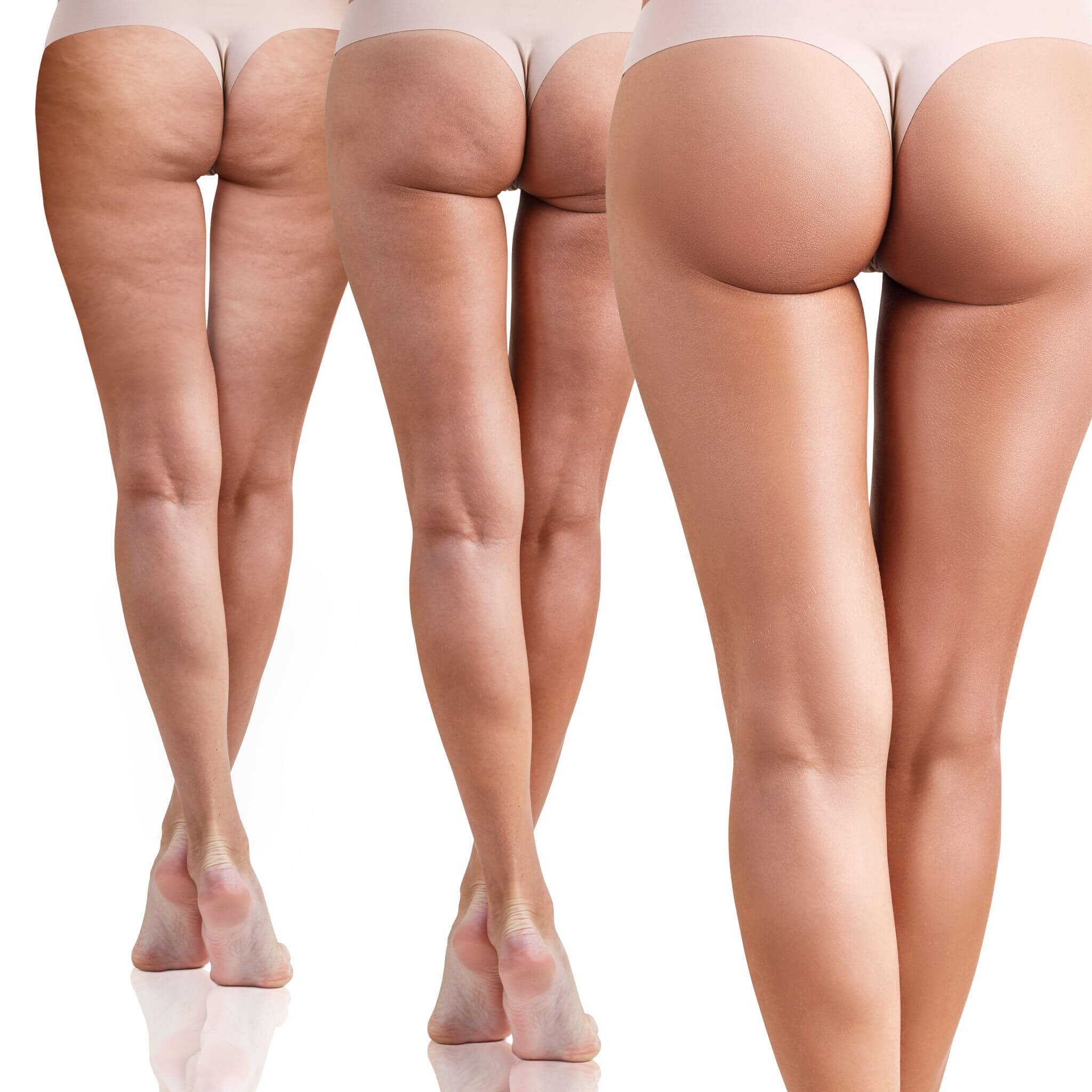 Premier MediSpa - Colorado Springs cellulite removal